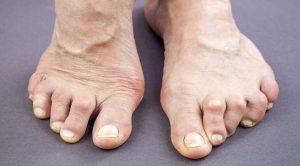 Rheumatoid Arthritis Image
